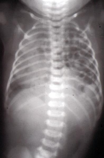 Congenital diaphragmatic hernia x ray