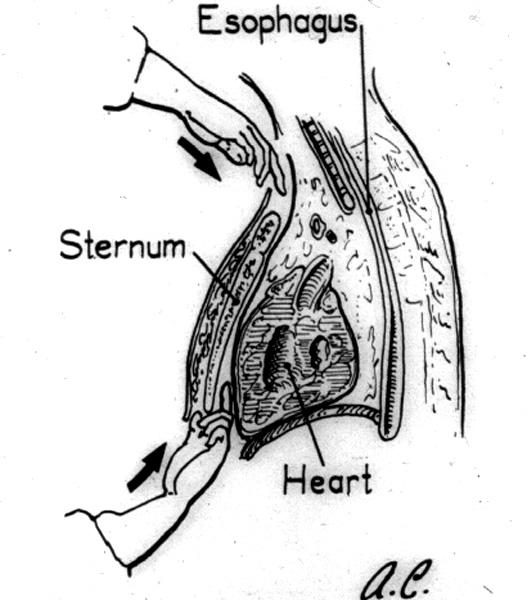 Sternum Diagram