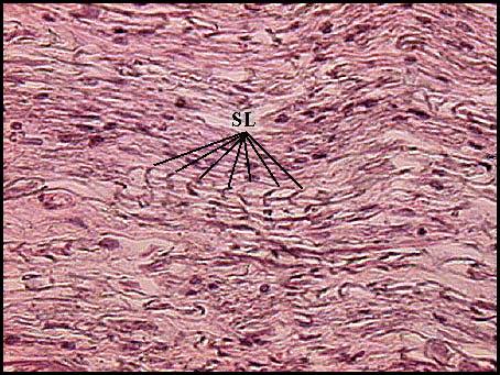 Iv Pns on Sensory System